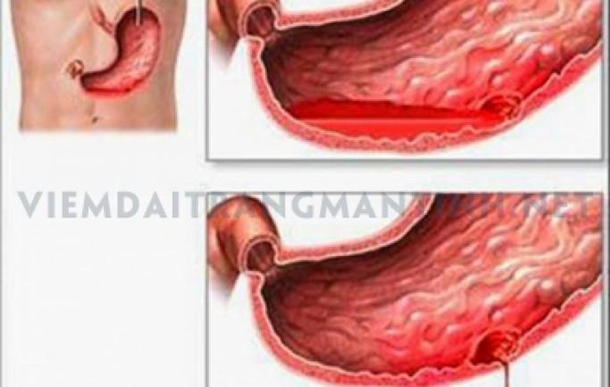 Hậu quả nguy hiểm của viêm đại tràng mạn tính