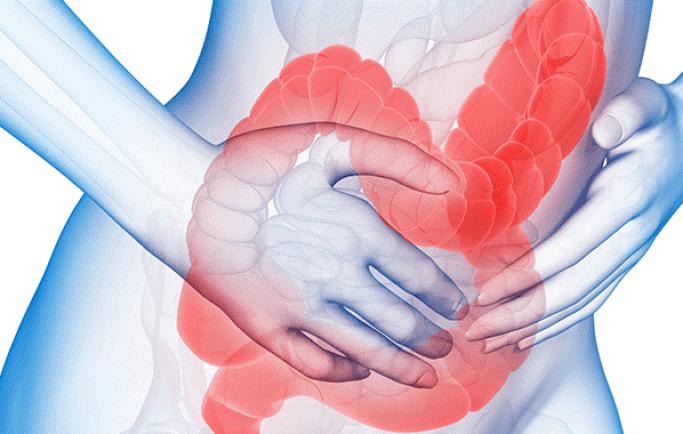 Hội chứng ruột kích thích khác với viêm đại tràng mãn tính như thế nào?