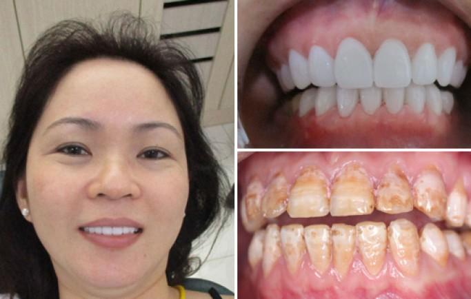 Khi hàm răng bị vàng nên làm gi để trắng sáng?