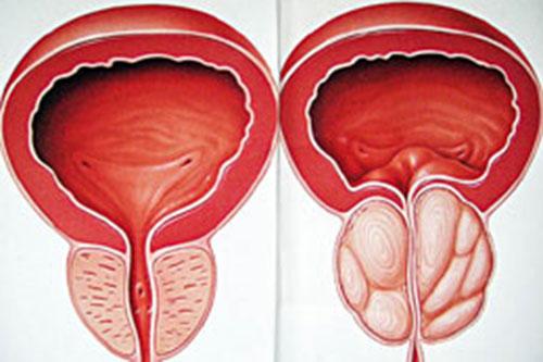 Bệnh u xơ tuyến tiền liệt có nguy hiểm không và điều trị theo hướng nào?