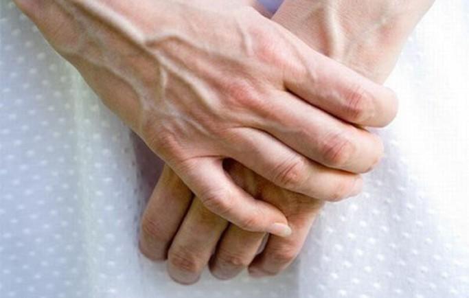 Người bị suy giãn tĩnh mạch tay có những biểu hiện nào?